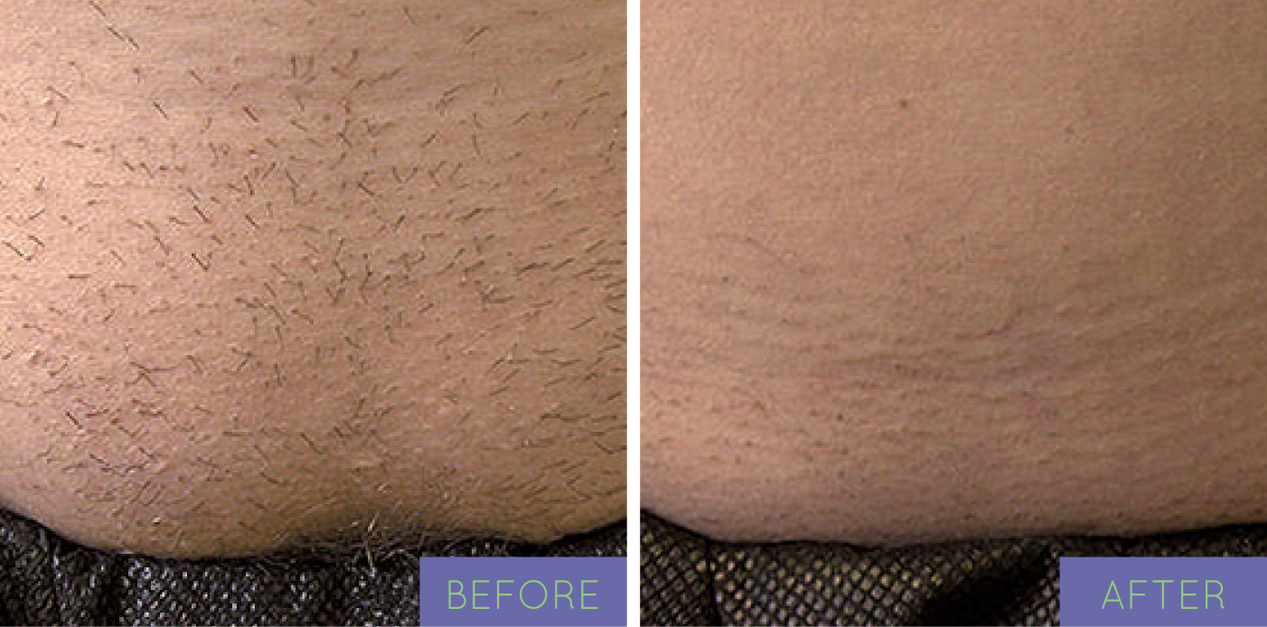 before andafter barebodylaser