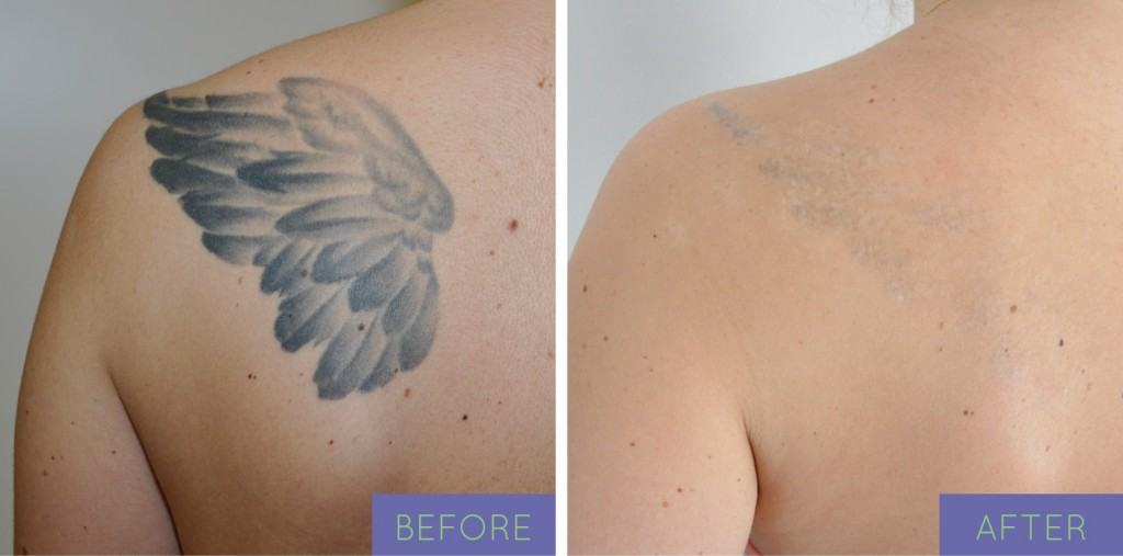 Laser tattoo removal in ny for How long is a tattoo removal session