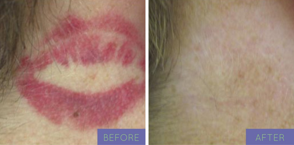 Tattoo removal in brooklyn / Great restaurants in albuquerque