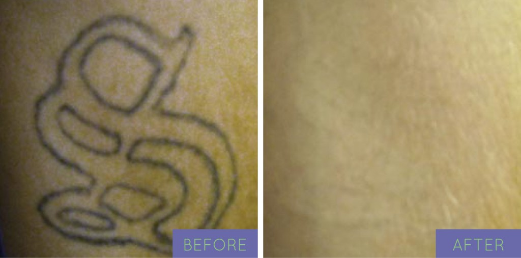 Tattoo Removal Deals Nyc Optimum Nutrition Deals
