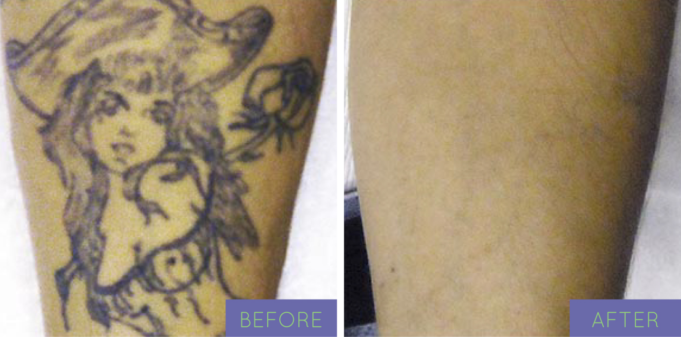before and after - tattoo removal